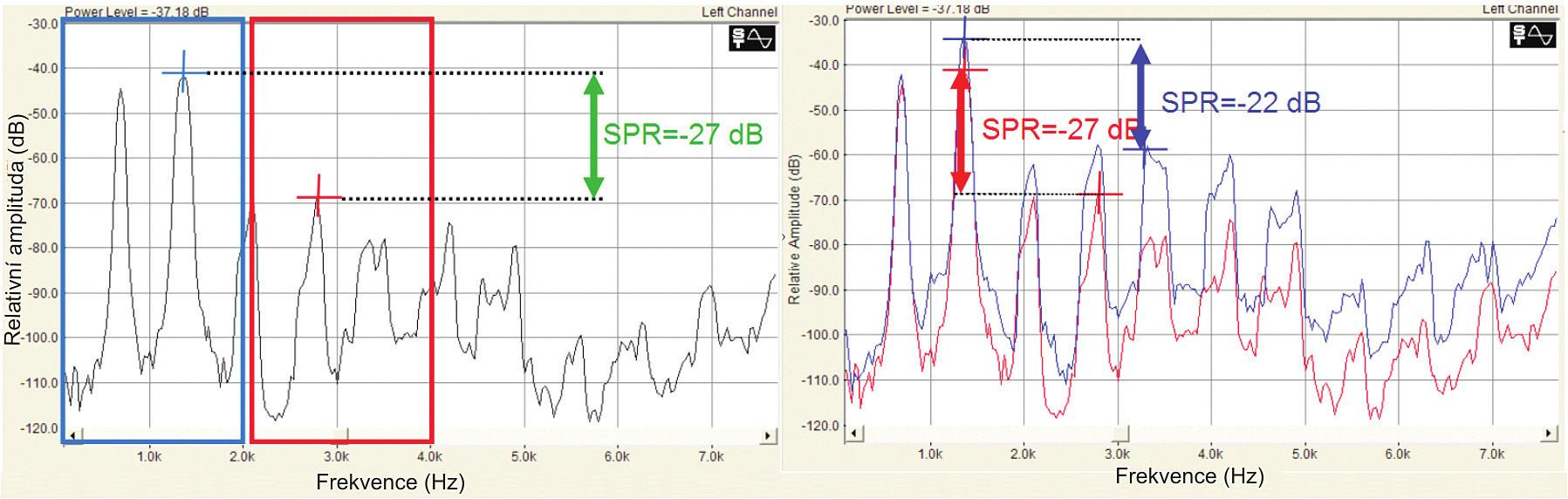 Schéma výpočtu a interpretace parametru Singing power ratio (SPR) – rozdíl maximálních hladin pásem 0-2 kHZ a 2-4 kHz.