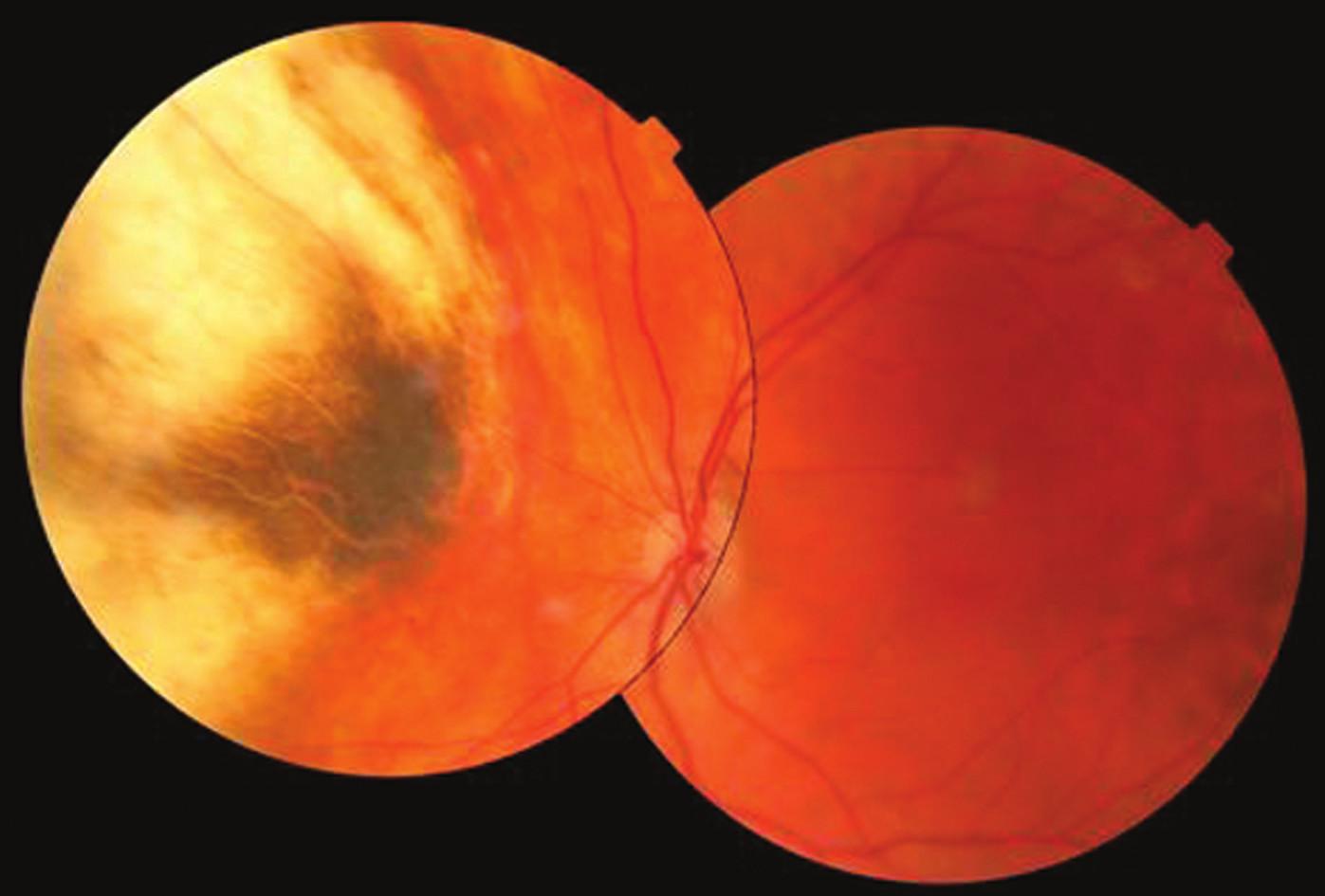 Pacient 2. Fotografia očného pozadia 9,6 rokov po brachyterapii s intaktnou makulou a atrofickým tumorom