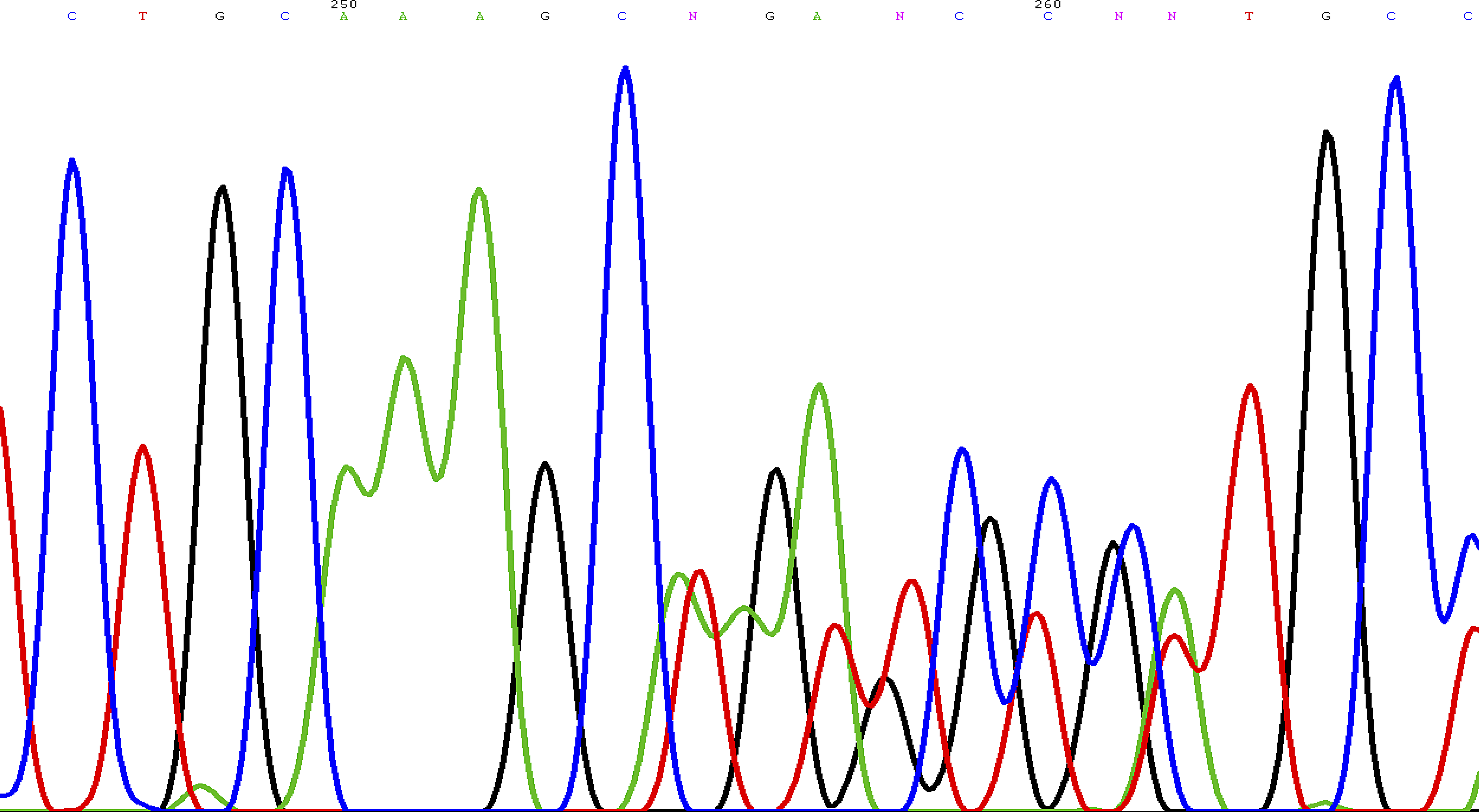 Sequence Chromatogram Showing the Novel Frameshift Mutation of the <i>SDHD</i> Gene: c.449_453dup (p.Val153LysfsX17)