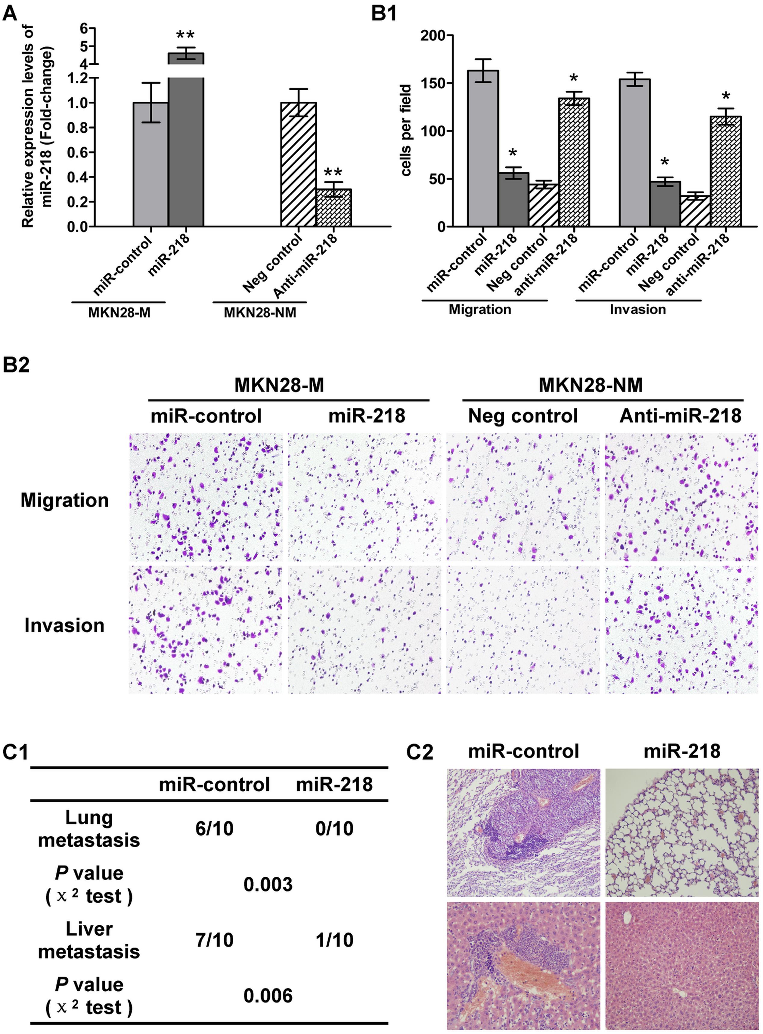 miR-218 suppressed tumor cell invasion and metastasis.