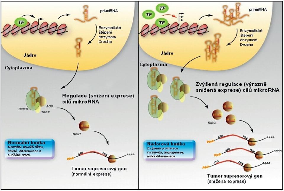 Transkripční kontrola exprese mikroRNA. V normální buňce probíhá normální regulace transkripce mikroRNA genů pomocí transkripčních faktorů (vlevo). Zvýšená exprese a/nebo aktivace transkripčního faktoru v nevhodnou dobu nebo prostoru (vpravo) může vést ke zvýšení exprese mikroRNA regulujících tumor supresorový gen, a tím ke snížení jeho exprese u nádorových buněk. Upraveno podle [7].
