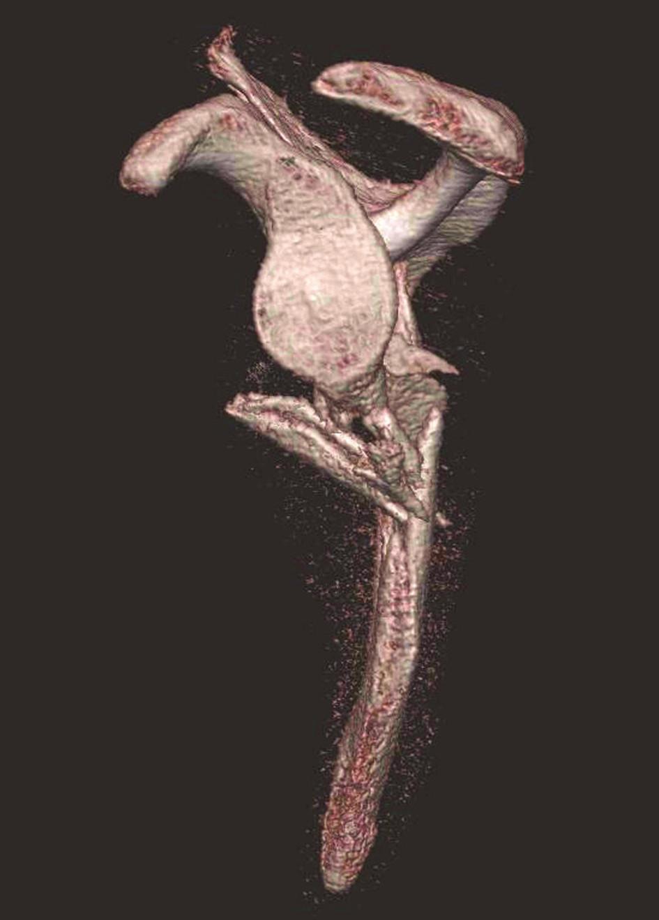Třídimenzionální CT rekonstrukce – pohled z laterální strany Je vidět intaktní glenoid. Fig. 4: Three-dimensional CT reconstruction – lateral view showing the intact glenoid