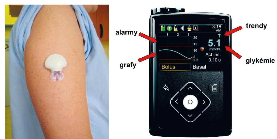 Senzor pro kontinuální monitorování glykémie zavedený subkutánně (A), přijímač (displej inzulinové pumpy) se základními informacemi o aktuální dynamice glykémií (B).