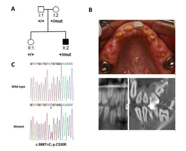 Figure 2.  Dental phenotype and genetic analysis of Family 2. (A) Pedigree of Family 2 showing affected (shaded) and unaffected (unshaded) individuals. The segregation of the wild-type (+) and missense variant (c.988T>C, NM_017565.3) p.C330R (mut) is shown below each family member. (B) Photograph (top) and dental imaging (bottom: left, panoramic; right, cone beam CT) showing the hypoplastic enamel phenotype and on the clinical image, mild gingival enlargement of individual II:2. (C) Electropherogram showing the wild-type allele (top) and heterozygous c.988T>C mutation (bottom) identified in Family 2 (top).