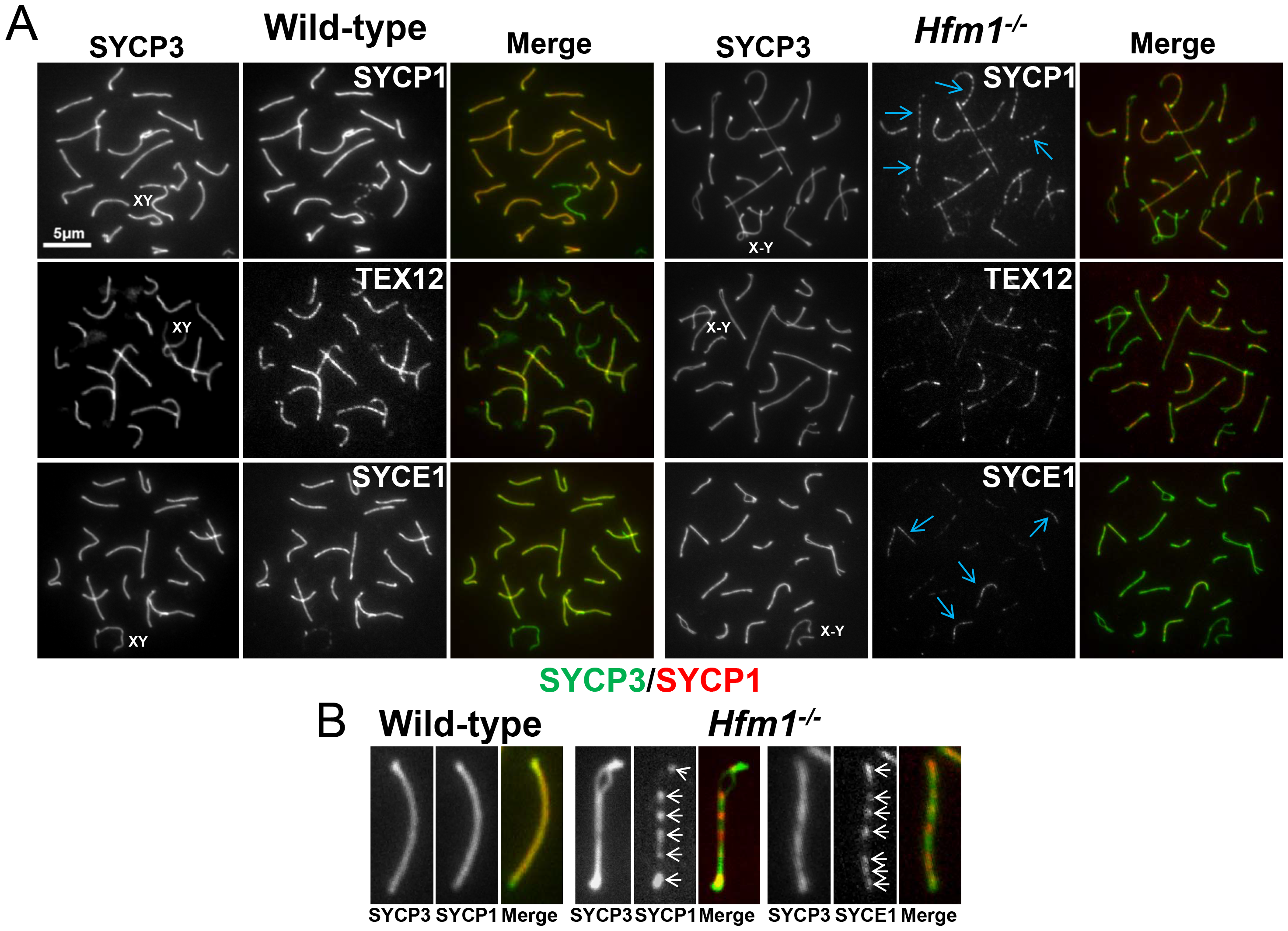 Synaptic defects in <i>Hfm1<sup>−/−</sup></i> spermatocytes.