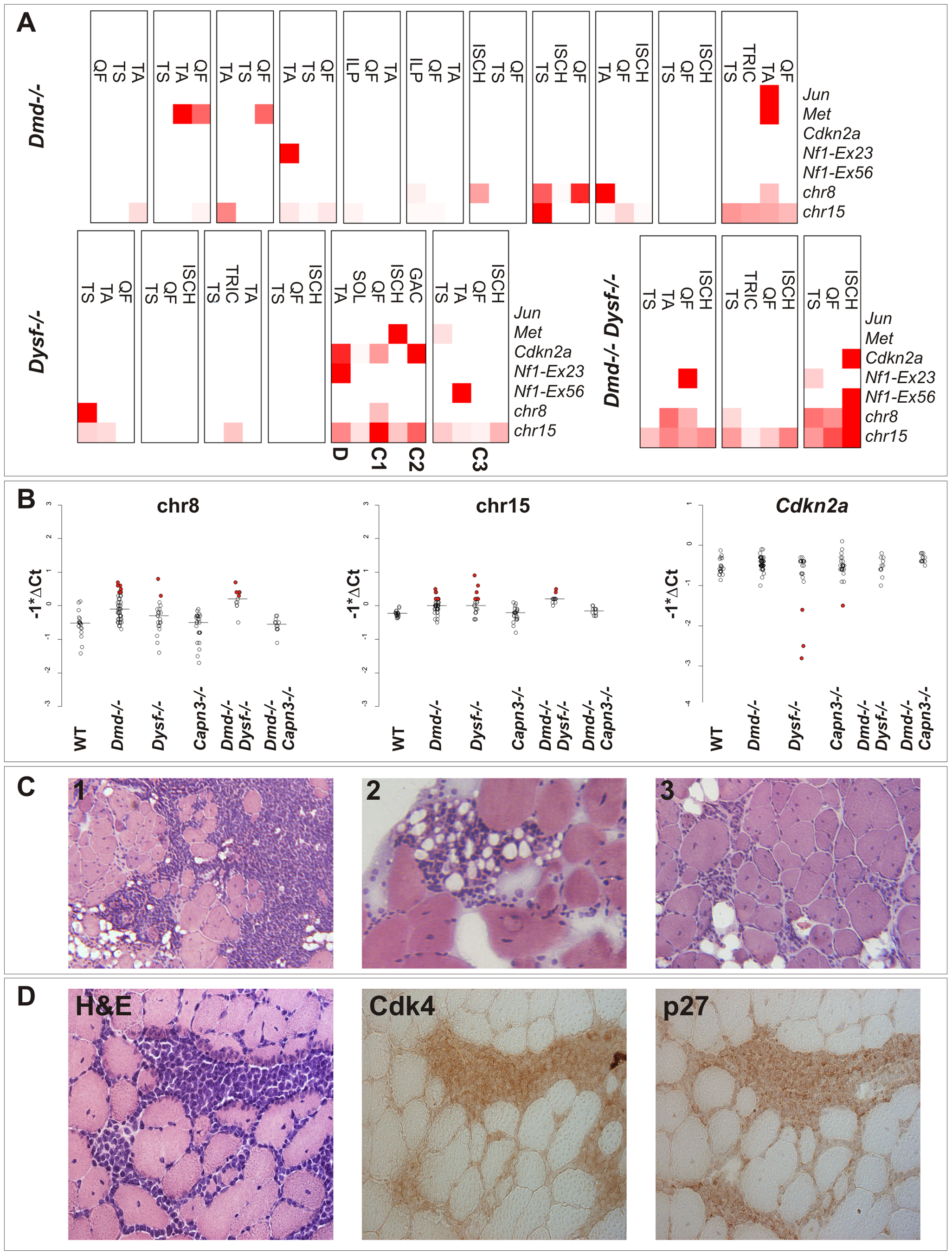 Genetic alterations frequently found in sarcomas are detectable in dystrophic skeletal muscle from clinically tumor-free mice.