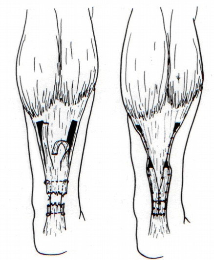 Plastika dle Lindholma [5] 