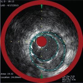 NIRS + IVUS po implantaci lékového stentu