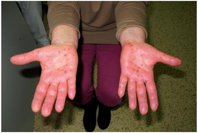 Papuly v dlaních