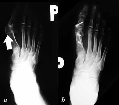 a: předoperační dorzoplantární RTG nohy, patrná varozita I. metatarzu s jeho prominující hlavičkou (šipka) a valgozitou palce – predilekční místo vzniku otlakových burzitid a ulcerací; b: pooperační dorzoplantární RTG nohy, po provedených korekčních osteotomiích I. metatarzu a základního článku palce