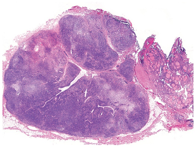 Sequestered thyroidal nodule juxtaposed to a lymph node simulating a metastatic thyroid carcinoma (magnification 20x).