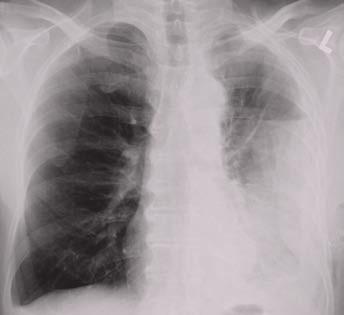 Levostranný pleurální výpotek uzavřený v pleurální kapse laterálně při stěně hrudní s vodorovnou kraniální hranicí signalizující přítomnost vzduchu v dutině.