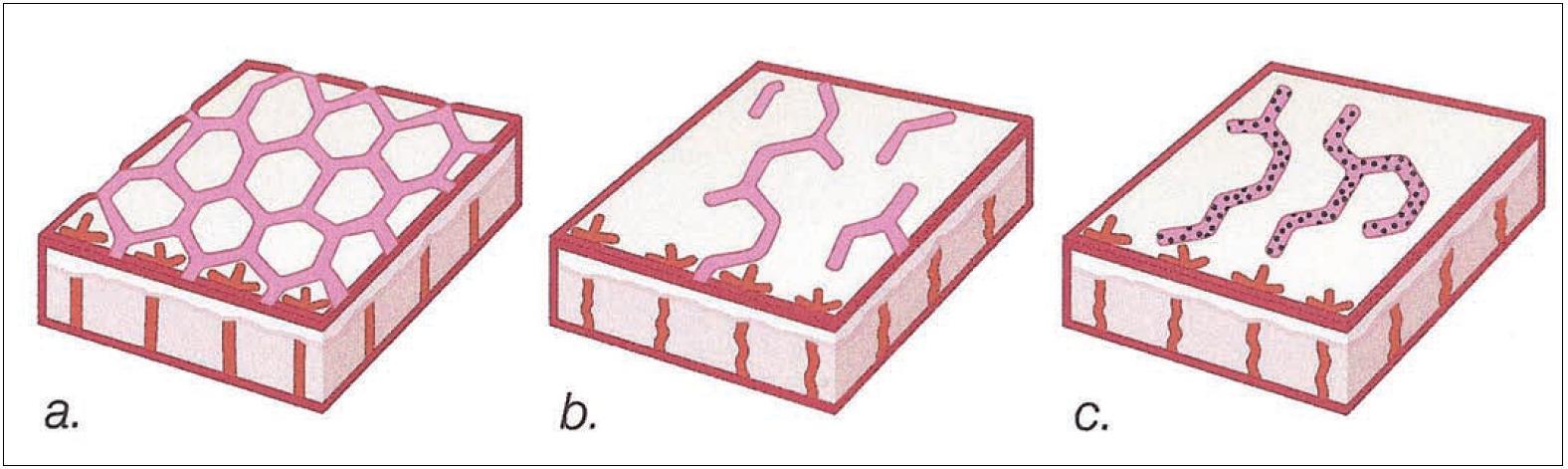 Kožní vaskularizace a) pravidelná síť u livedo reticularis; b) nepravidelná síť u livedo racemosa; c) retiformní purpura (Modifikováno podle DOWD P. M. [3])