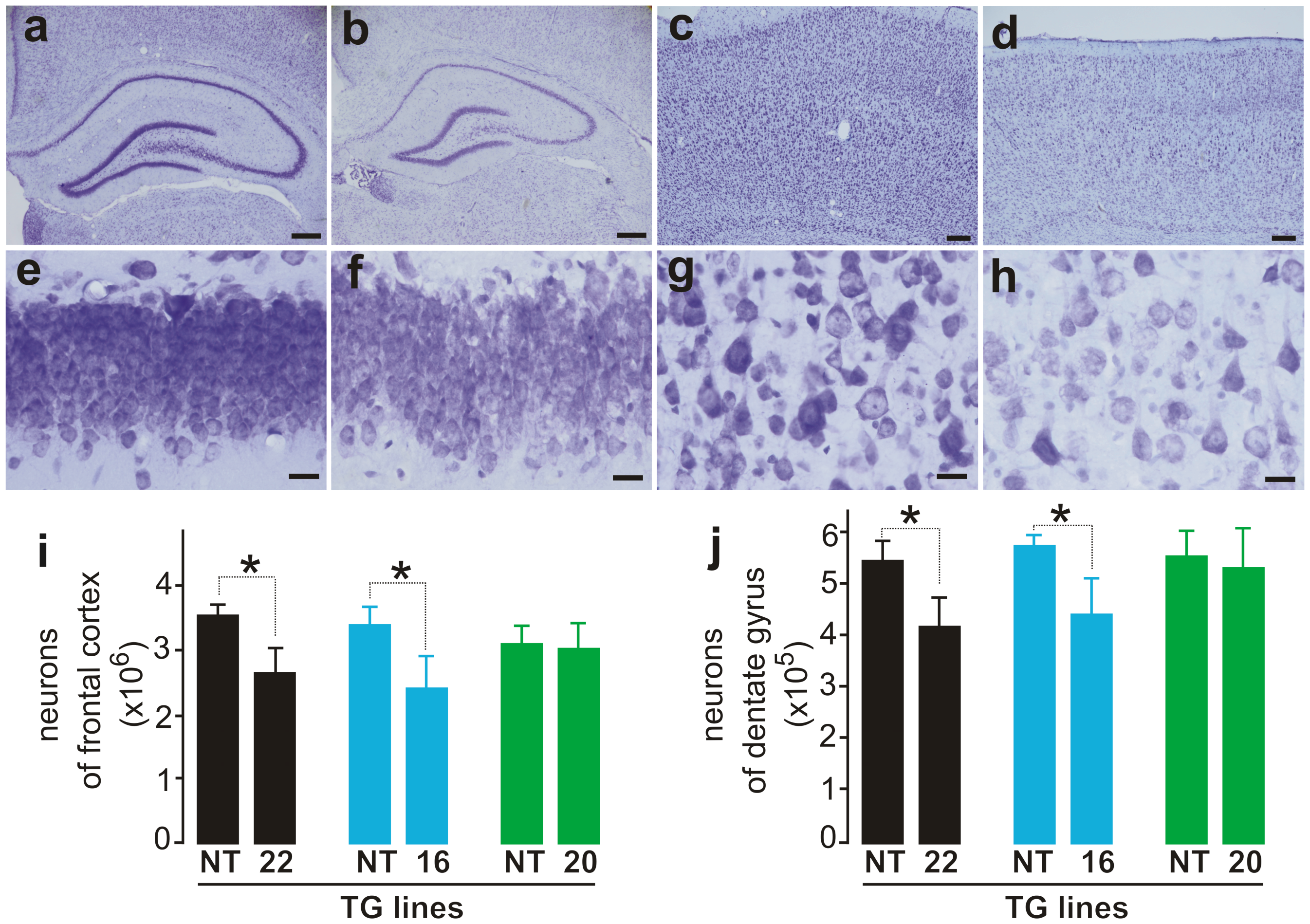 Loss of neurons in the cortex and hippocampus of mutant FUS transgenic rats.