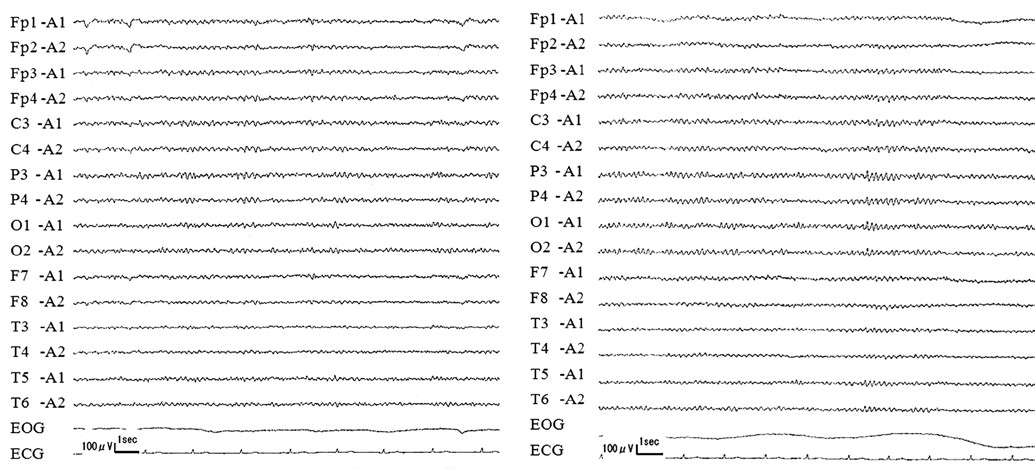 Fig. 2. Electroencephalography (EEG). A (left): EEG performed three days after onset shows 9-Hz background activity and some 7-Hz waves. B (right): EEG performed one month after onset shows 10-Hz background activity and no slow waves.