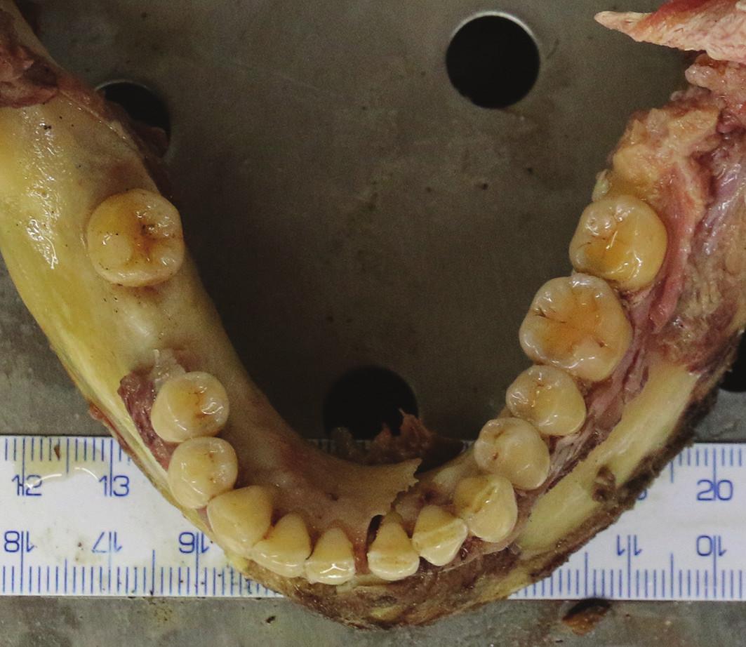 Vypreparovaná dolní čelist zemřelé ženy.