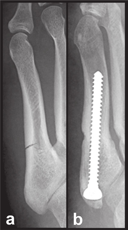 Osteosyntéza intramedulárním šroubem Fig. 7: Internal fixation by intramedullary screw