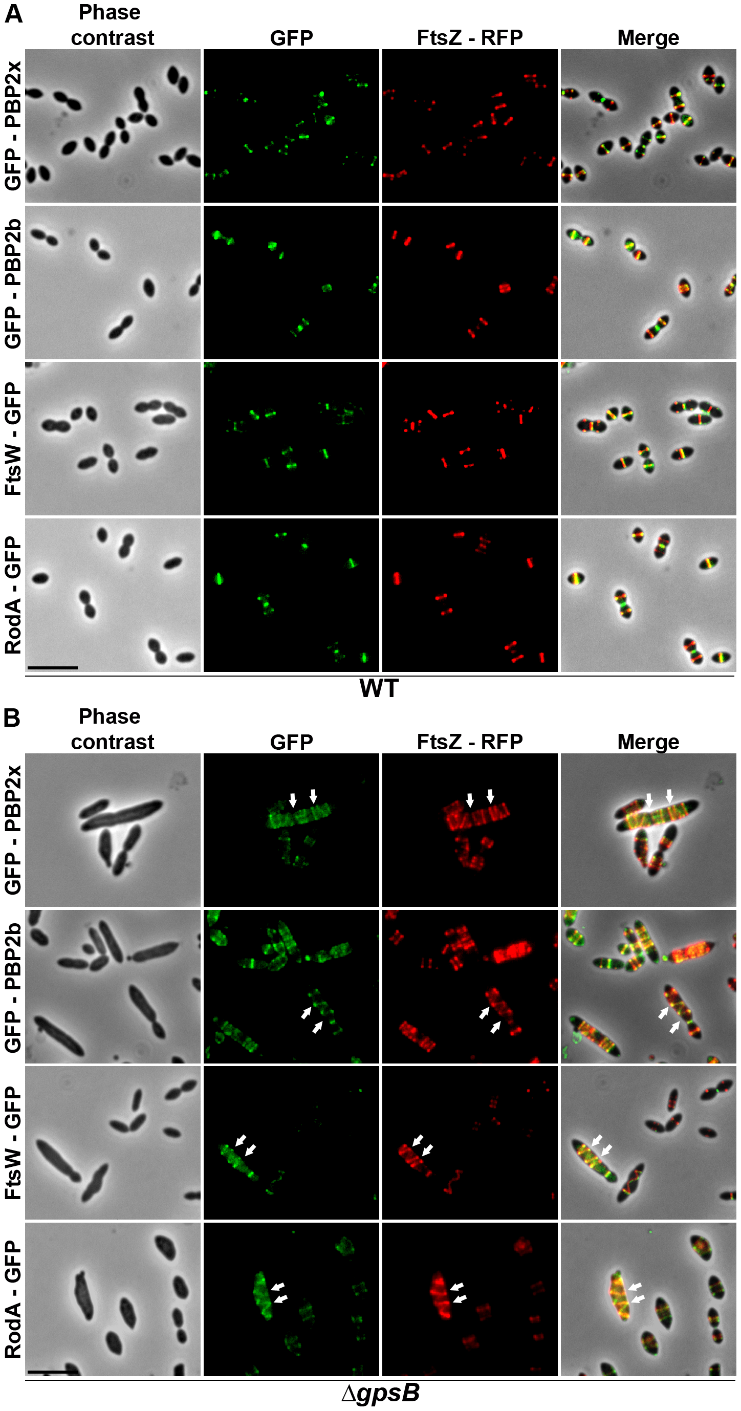 Localization of GFP fused PBP2x, PBP2b, FtsW or RodA together with FtsZ-RFP in WT and Δ<i>gpsB</i> cells.