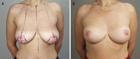 A. Zdravá BRCA1-pozitivní pacientka před oboustrannou subkutánní mastektomií s modelací; 2B. Po rekonstrukci implantáty.