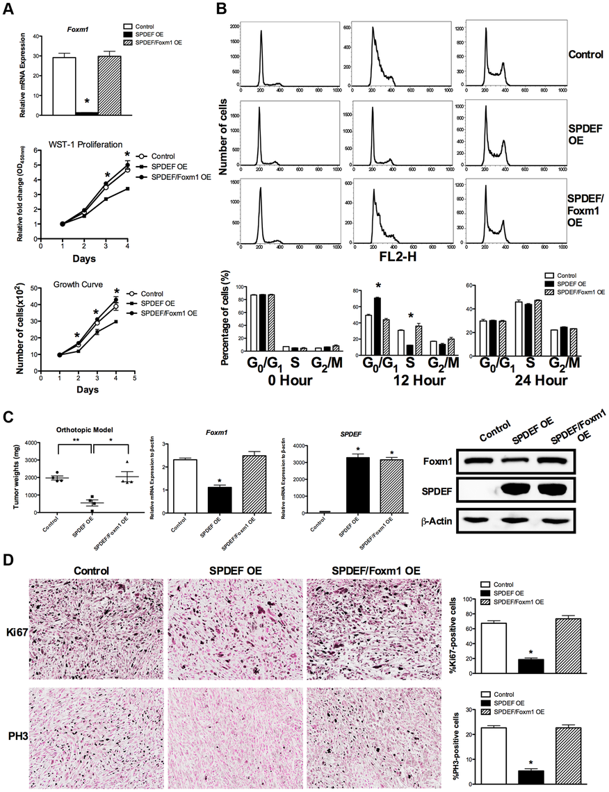 Re-expression of Foxm1 in the SPDEF-positive prostate adenocarcinoma cells restored tumor cell proliferation <i>in vitro</i> and <i>in vivo</i>.