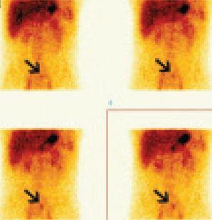 Dynamická scintigrafie dutiny břišní u 24letého muže s enteroragií. Sumace dynamických scintigramů po 4 minutách. Akumulace <sup>99m</sup>Tc-pertechnetátu v ektopické žaludeční sliznici v Meckelově divertiklu v horním hypogastriu vlevo od střední čáry pod bifurkací aorty.
