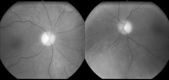 Na snímku očního pozadí jsou patrné ostře ohraničené bledé papily – obraz odpovídá pokročilé atrofii zrakového nervu obou očí.
