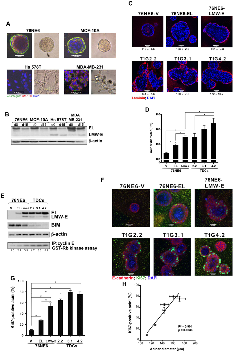 LMW-E induces formation of large and highly proliferative acini.