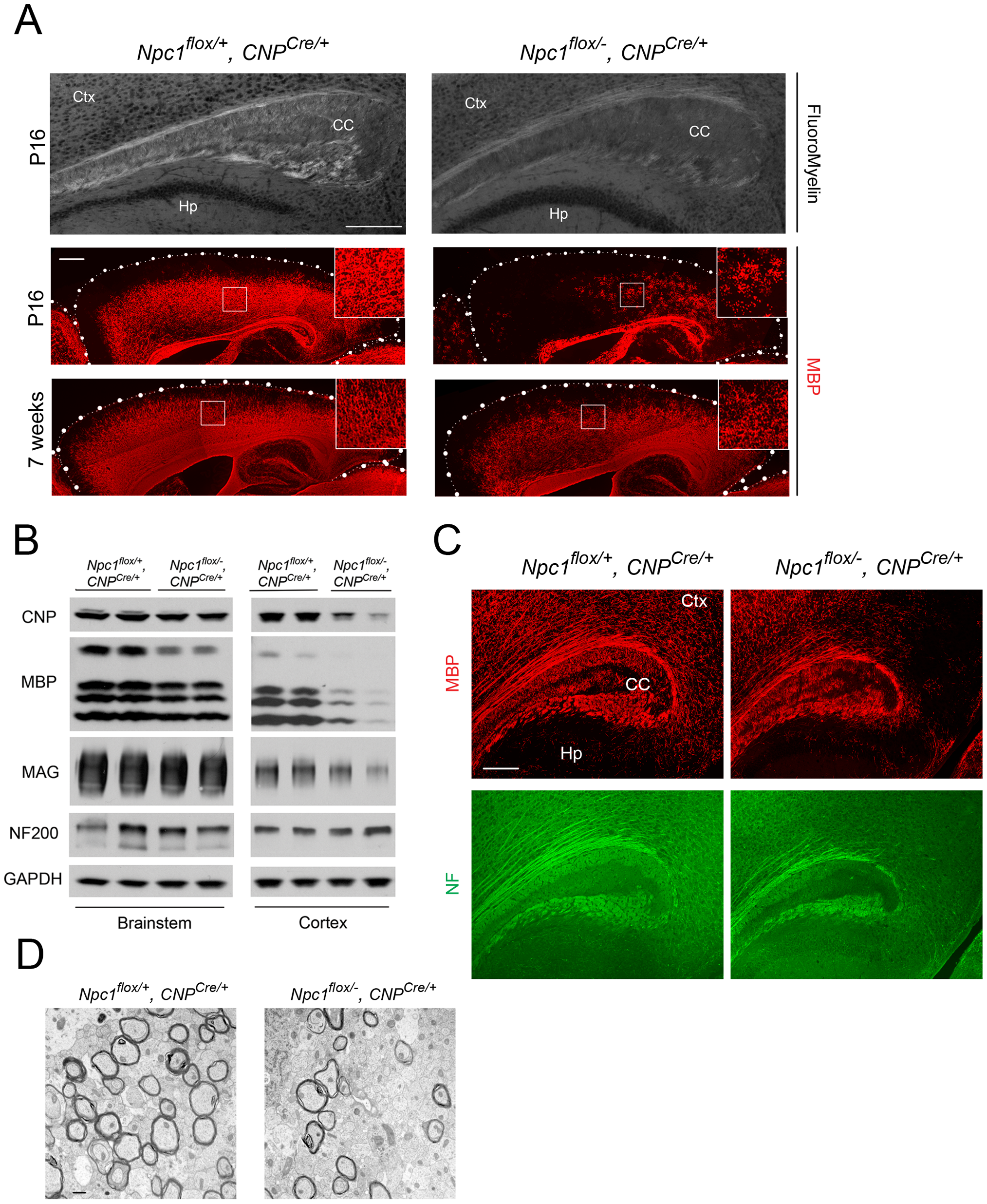 Forebrain dysmyelination in mice with oligodendrocyte-specific deletion of <i>Npc1</i>.