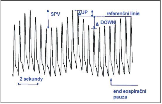 SPV – rozdíl mezi maximální a minimální hodnotou systolického tlaku během jednoho respiračního cyklu