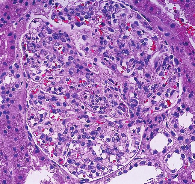 Globální mesangiální i endokapilární proliferace s polynukleáry v kapilárních luminech je typickým morfologickým znakem klasické postinfekční GN (objektiv 40x, HE).