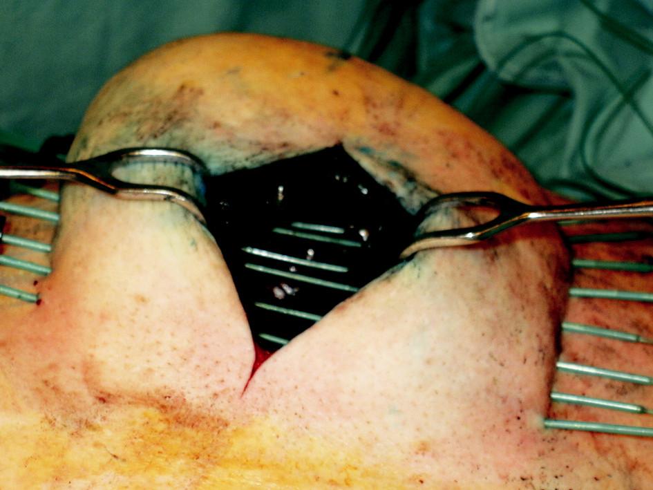 Provedení peroperační intersticiální brachyterapie lůžka tumoru pomocí plastikových vodičů Fig. 2. Peroperative interstitial brachytherapy of a tumor focus using plastic leaders