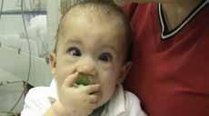 a 2. Syntostigminový test u 11měsíční dívky s mutací RAPSN genu pro Rapsyn. Dokumentace MUDr. Pavel Srnský.