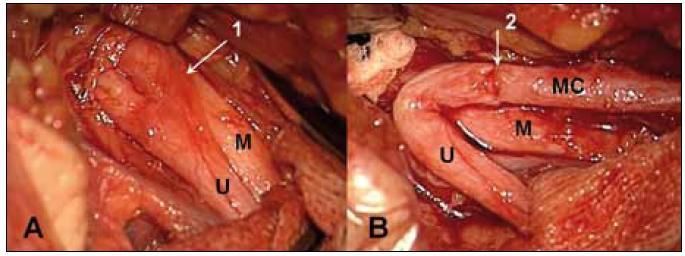 Sutura n. musculocutaneus (MC) na kořen C5 pomocí vaskularizovaného štěpu z n. ulnaris (U) při avulzi dolních kořenů. A – n. ulnaris s cévní stopkou (1), B – stav po sutuře štěpu na n. musculocutaneus (MC) (2), M – n. medianus.