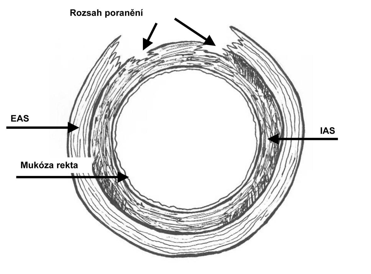 Segmentovaná ruptura perinea stupně 3c