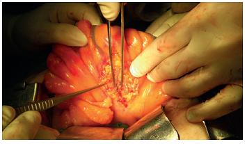 Znázornění lymfatik barvivem po otevření serózy Fig. 3: Lymphatic vessels after visceral peritoneum opening