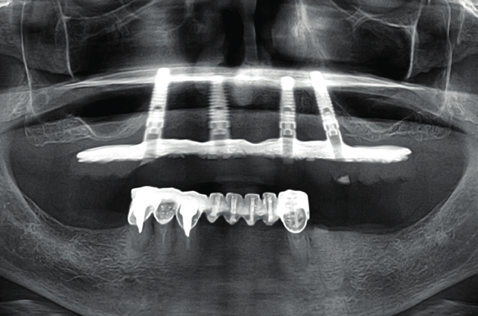 All-on-4. Oba krajní implantáty jsou tilted