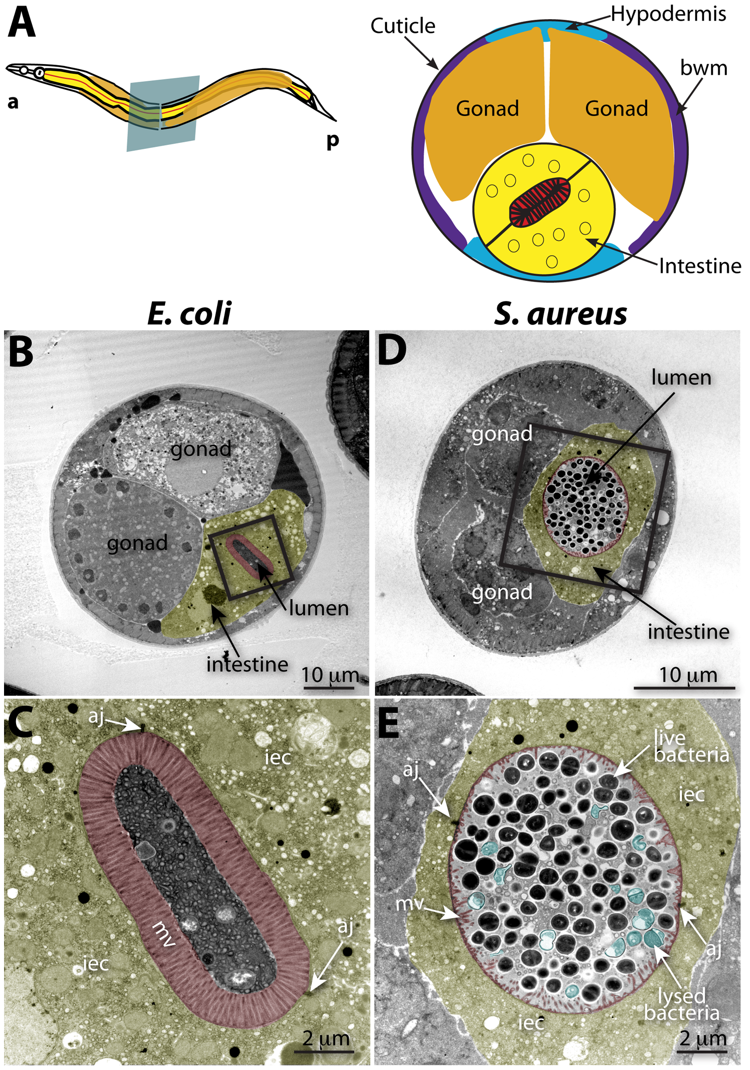Intestinal distention, enterocyte effacement, and bacterial lysis at 12 h of <i>S. aureus</i> infection in <i>C. elegans</i>.