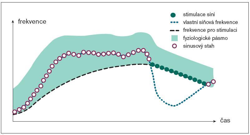 Post Exercise Response. Rychlost poklesu tepové frekvence po přerušení zátěže je limitována. Snížení disperze intervalů P-P je jedním z algoritmů pro prevenci paroxyzmů fibrilace síní. (zdroj: Vitatron Selection 9000 AF 3.0, výukový materiál)