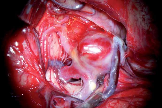 Peroperační nález aneuryzmatu. Krček není vydefinován a splývá se širokým fundem.