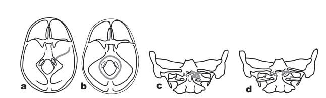 Klasifikace zlomenin kondylů okcipitální kosti podle Jeannereta.