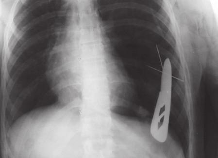 RTG snímek hrudníku: zachycen zevně viditelný bodný nástroj (nůž) a prokázány další dva bodné nástroje (jehly), které se nacházejí v dutině hrudní (sebevražda).