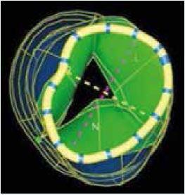 3D TEE hodnotenie aortálneho anulu. Zdroj: Siemens USA