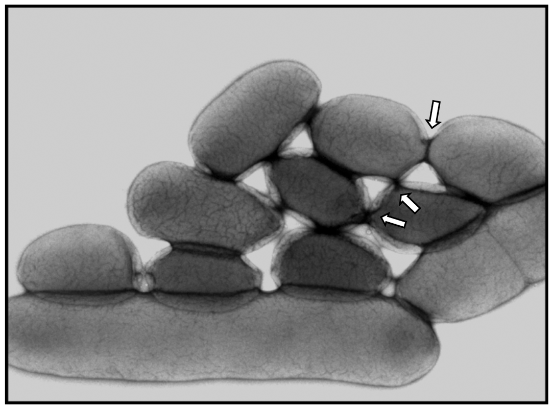 Electron microscopy of IP32637 grown at 4°C in LB with agitation.