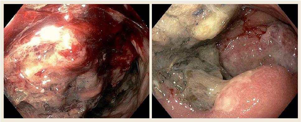 Horní endoskopie našeho pacienta ukazující objemné květákovité masy při postižení D2 difuzním velkobunečným B lymfomem. Fig. 3. Upper gastrointestinal endoscopy of our patient showing large fungating masses of diffuse B-cell lymphomas in the second part of the duodenum.
