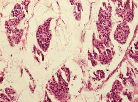 Identický případ, histologicky se jedná o mucinózní karcinom a invazivní duktální karcinom NOS varianta, grade 3, estrogenní receptory 50 %, progesteronový receptor negativní.