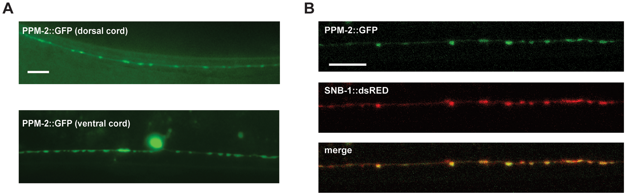 PPM-2 localizes to the presynaptic terminal.