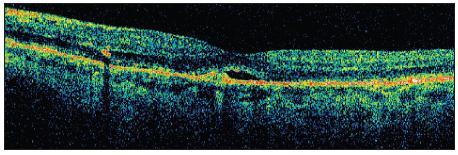 OCT ľavého oka pred zahájením liečby. Oploštenie foveolárnej depresie, tesne nad RPE je CNV so subretinálnym edémom v okolí