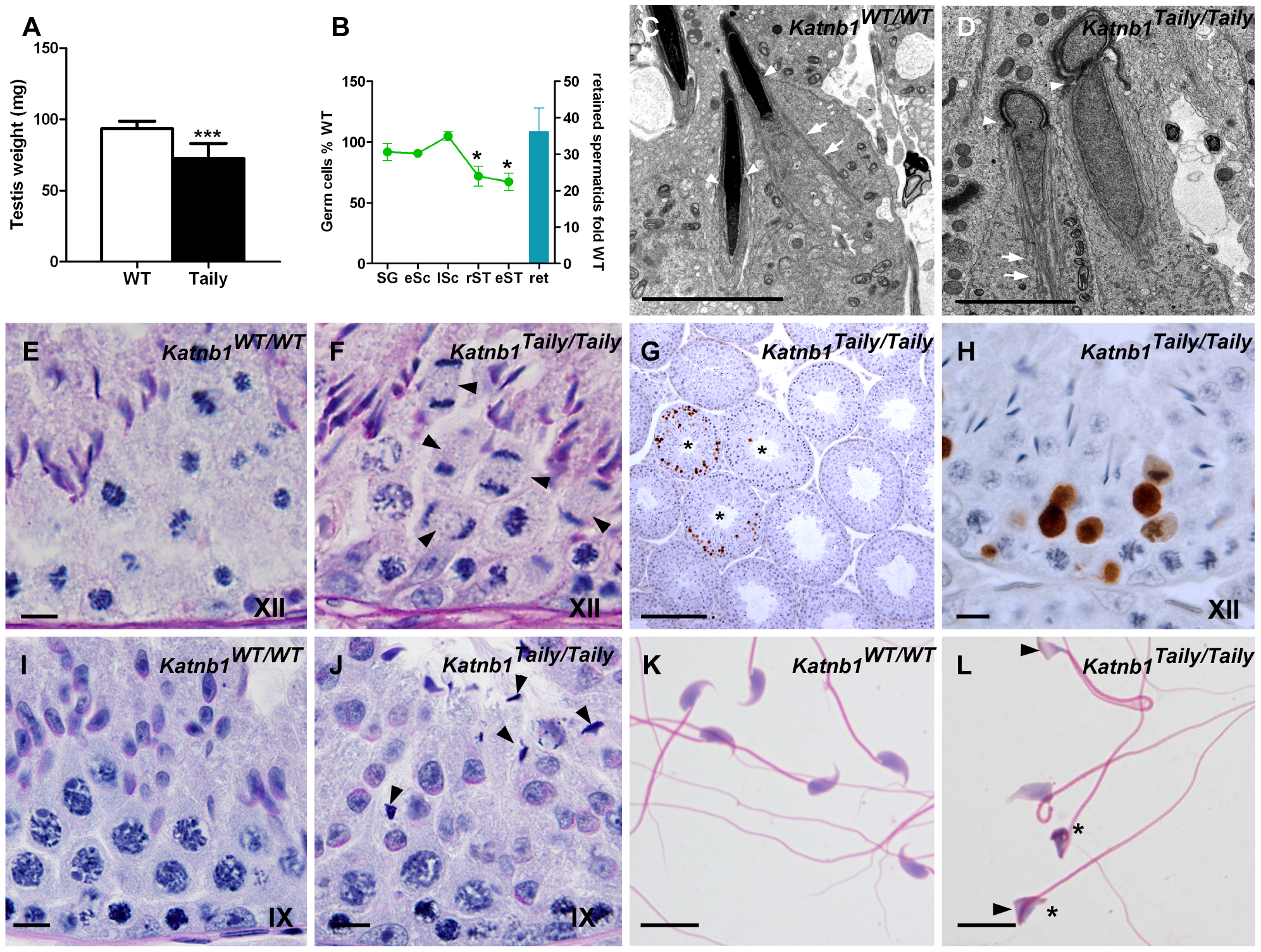 Spermatogenic defects in Taily mice.