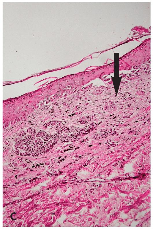 Obr. 5. SAMPUS (superficial atypical melanocytic proliferations of unknown significance). Oválná, symetrická pigmentovaná makula s depigmentací v horním pólu (A – klinický obraz). V dermatoskopickém obrazu ukazuje několik bezstrukturních bělavých okrsků (B – šipka), které histologicky korespondují s ložisky subepidermální plošné fibrózy (C – šipka). Jde o dermoepidermální superficiální melanocytární lézi, která se ložiskovitě blíží více névu, jinde povrchově se šířícímu melanomu s regresí a nelze zde ani vylouãit vliv traumatizace, analogicky rekurentními névu (HE, 100x).