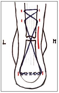Semiinvazivní technika (zde se zavedením vlákna přes tuber calcanei)